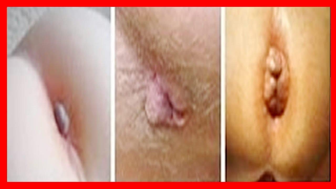 imágenes de hemorroides externas