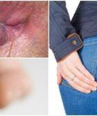 REMEDIOS CASEROS para las HEMORROIDES EXTERNAS